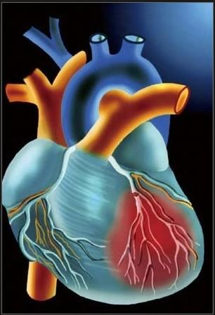 心肌病症状,心肌病治疗,心肌病原因,心肌病注意事项,心肌病危害,心肌病预防