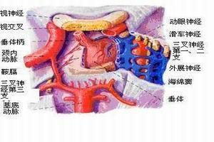 垂体瘤症状,垂体瘤治疗,垂体瘤原因,垂体瘤注意事项,垂体瘤危害,垂体瘤预防