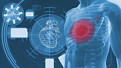 心绞痛的症状有哪些,心绞痛发作时的症状有哪些