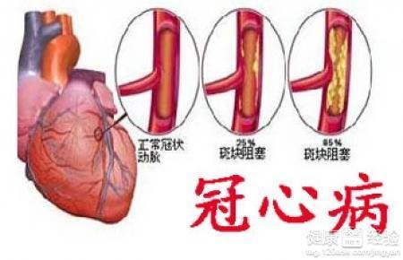 心绞痛如何预防,心绞痛是怎么回事