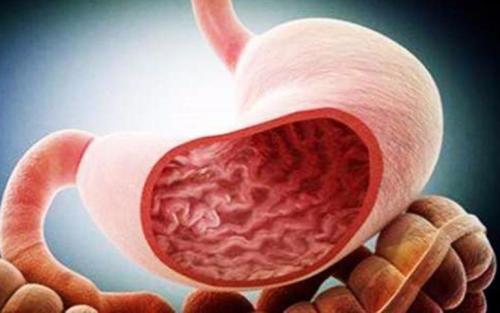 胃癌晚期发病的一些特点,胃癌发病的特点是什么