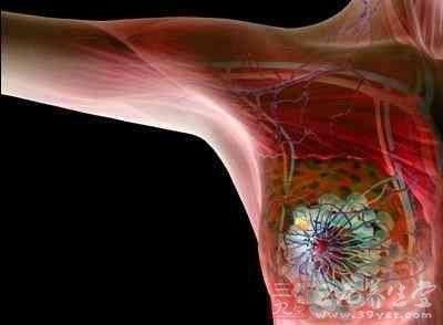 乳腺癌有哪些典型症状,乳腺癌的症状表现主要有哪些