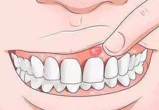 口腔溃疡的检查项目有哪些,口腔溃疡需要做哪些检查