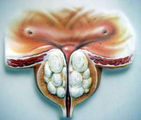 慢性前列腺炎是怎么引起的,慢性前列腺炎引起原因有哪些