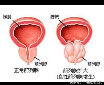 慢性前列腺炎的症状以及治疗方法有哪些