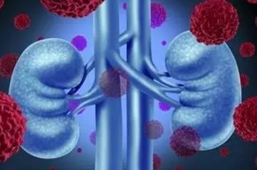 尿毒症如何鉴别诊断,尿毒症怎么鉴别