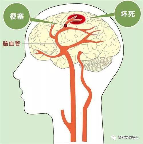 脑梗死应该做哪些检查