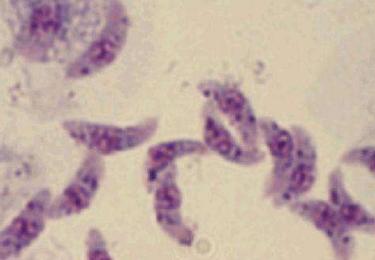 弓形虫抗体阳性的原因