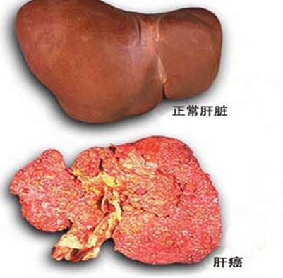 食管癌,胃癌,结直肠癌
