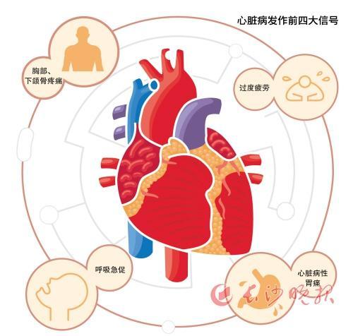 做心脏支架能否做核磁共振