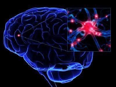脑梗死检查方法有哪些