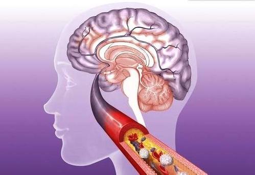 脑梗死出现后的检查方法,脑梗死可以并发哪些疾病